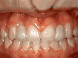 missing lateral incisors after